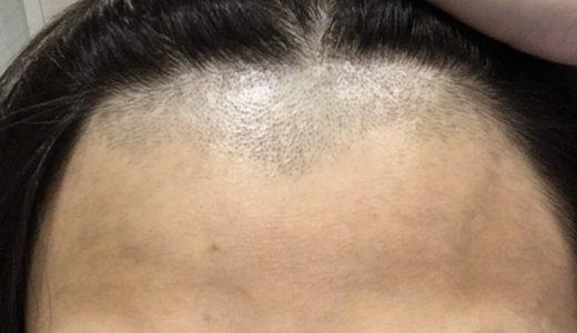 おでこを広くするために、生え際と産毛を脱毛しました!